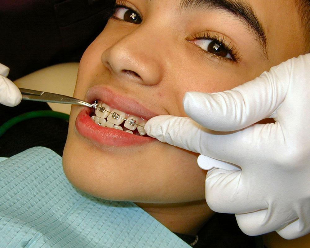 dentist working on child's braces