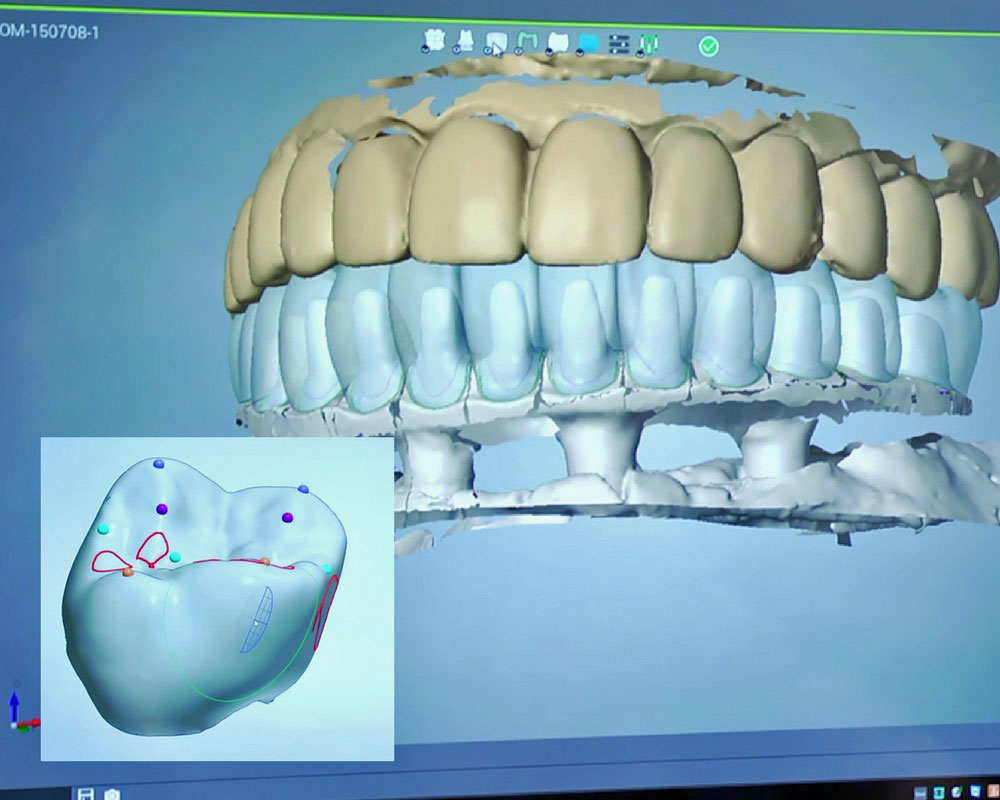 digital teeth diagram using CAM technology