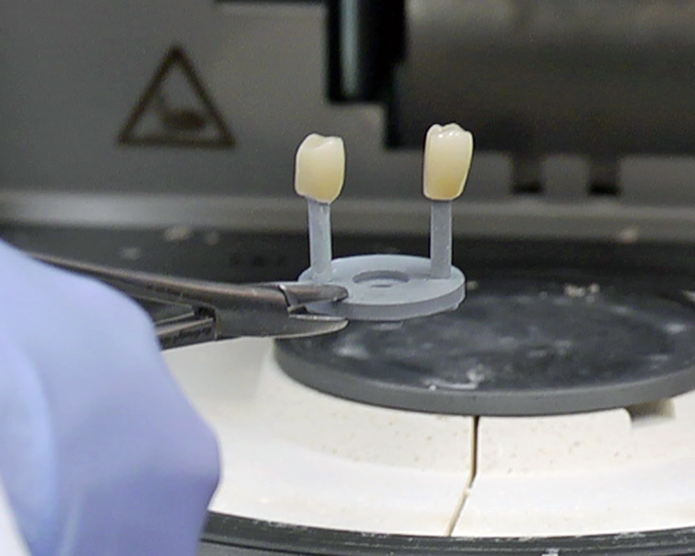 Crowns being created in a lab