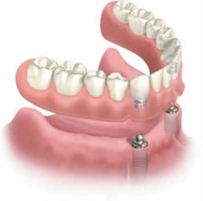 digital picture of implant dentures