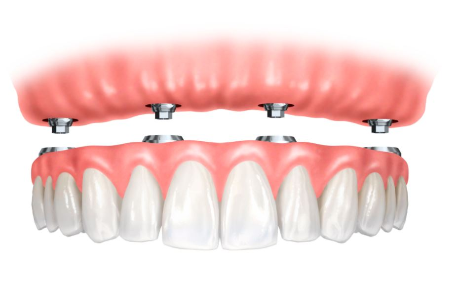 full mouth implant denture digital photo