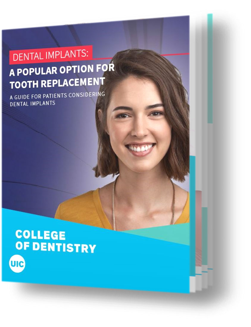 book titled a popular option for tooth replacement