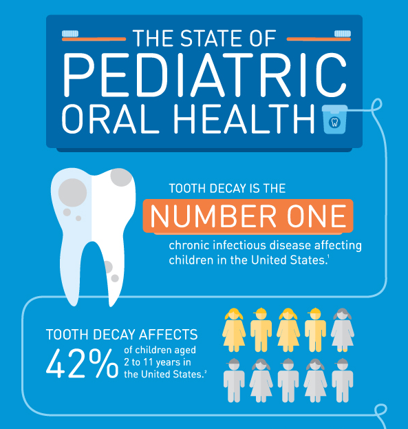 the state of pediatric oral health: toorth decay is the number 1 chronic infectious disease affecting children in the US; tooth decay affects  42% of children 2-11 in the US