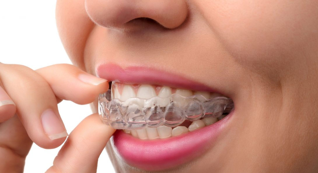 Guide to Tooth Alignment for Adults