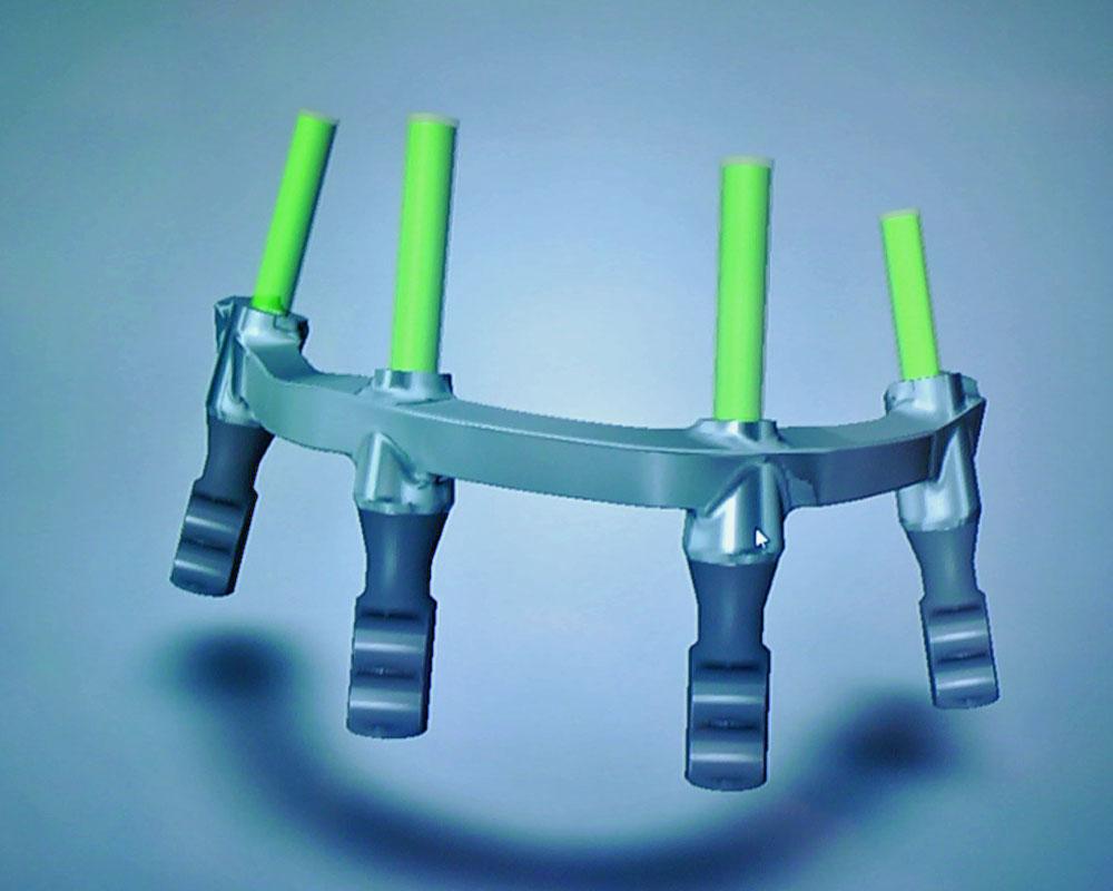 3D CAD/CAM Technology