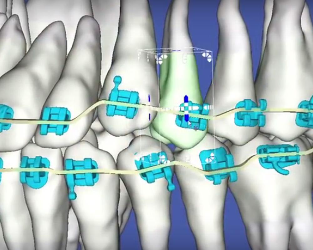 digital teeth with braces