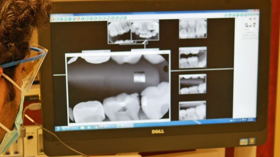 diagram of teeth on computer screen