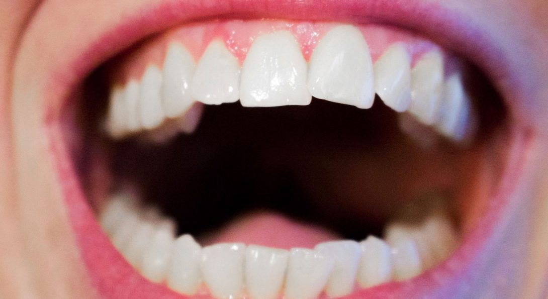 UIC Researchers Find Connection Between Alzheimer's and Gum Disease