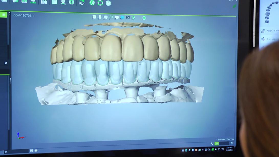 digital teeth diagram
