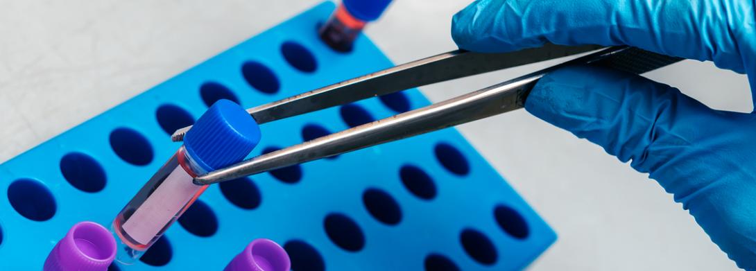 vials in tray